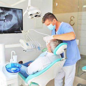 Implantes Dentales Dentista Estepona